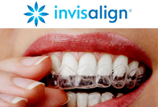 Midtown Manhattan Invisalign Teeth Alignment