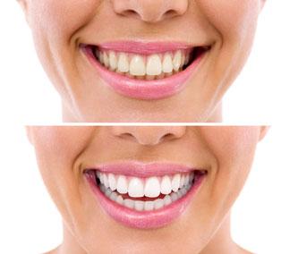 One-Hour Teeth Whitening