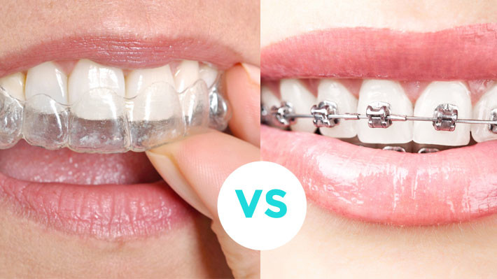 Should I get Invisalign or regular braces?