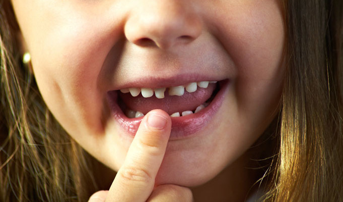How fast can a tooth decay?