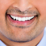 Porcelain crowns vs porcelain veneers