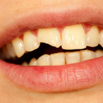 What treatment am I likely to need for my broken front tooth?