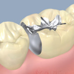 Amalgam fillings, are they safe?