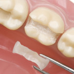 When You Need Onlays, What Is The Best Filling Material for Your Teeth?