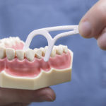 Dentists Frustrated by AP Report Questioning Flossing's Value