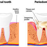 Six Early Warning Signs of Gum Disease