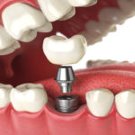 Relax: Why You Shouldn't Fear Your Dental Implant Surgery