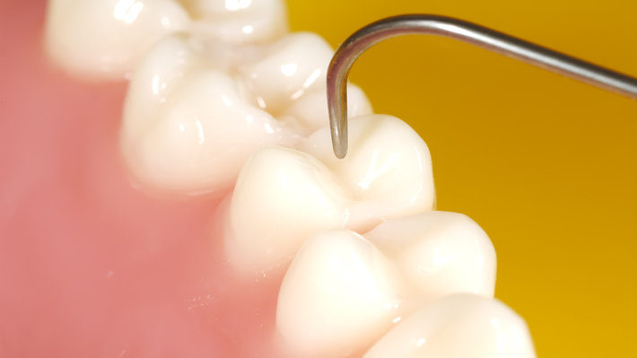 What Factors are Putting You at Greater Risk for Cavities?