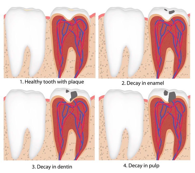 how fast can tooth decay diagram